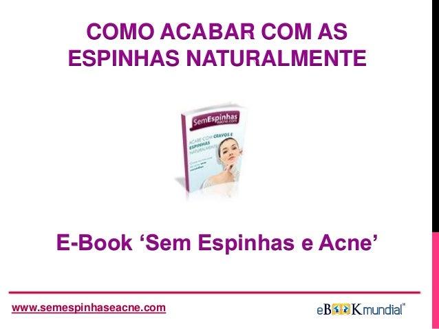 E-Book 'Sem Espinhas e Acne' www.semespinhaseacne.com COMO ACABAR COM AS ESPINHAS NATURALMENTE