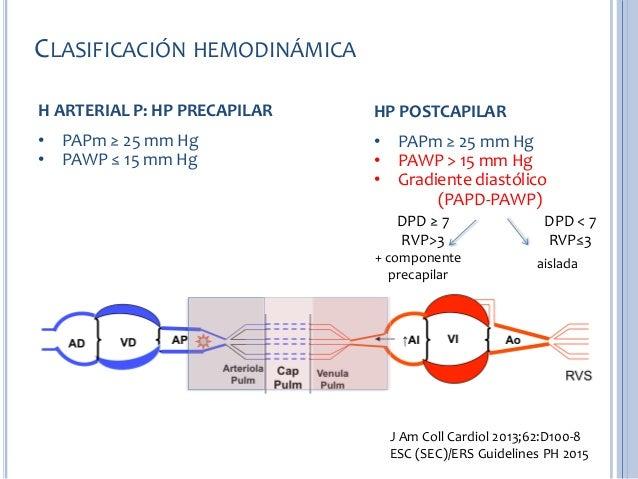 Bienvenido a un nuevo aspecto de Hipertensión arterial
