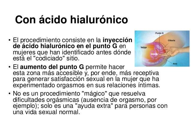 Con ácido hialurónico • El procedimiento consiste en la inyección de ácido hialurónico en el punto G en mujeres que han id...