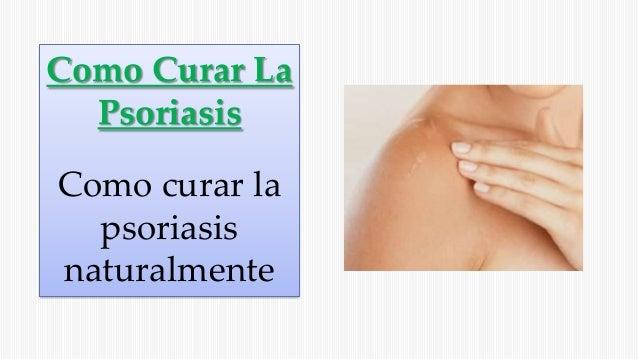 Como Curar La Psoriasis Como curar la psoriasis naturalmente