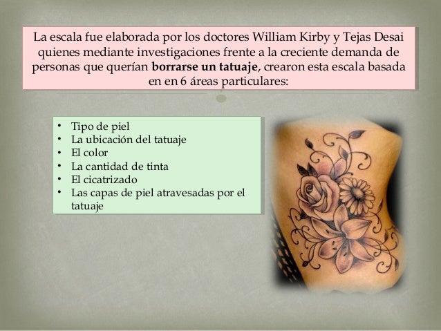 Como Quitar Un Tatuaje