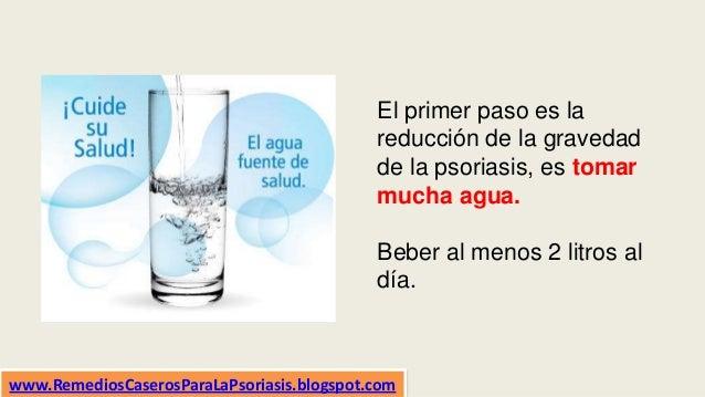 El primer paso es la reducción de la gravedad de la psoriasis, es tomar mucha agua. Beber al menos 2 litros al día. www.Re...