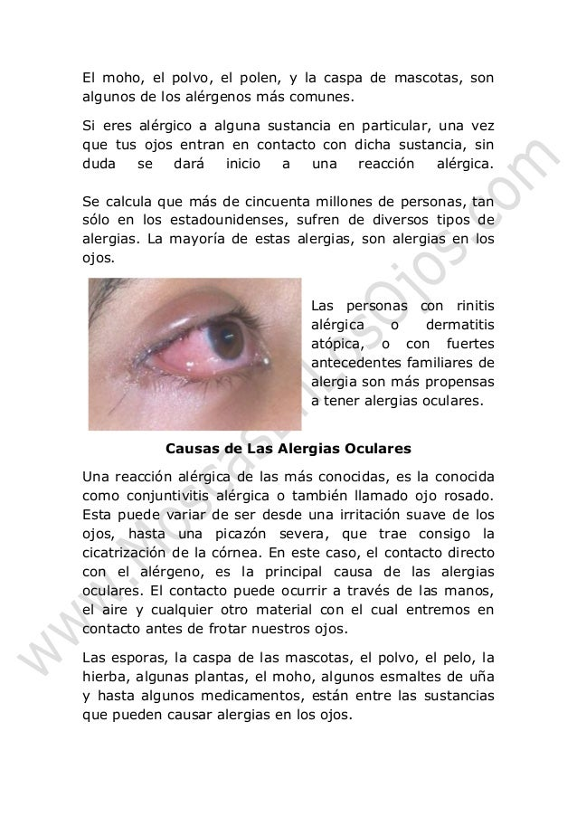 Las arrugas alrededor de los ojos arreglamos por el láser las revocaciones