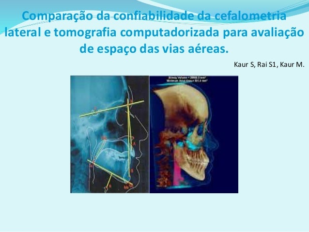 Comparação da confiabilidade da cefalometria lateral e tomografia computadorizada para avaliação de espaço das vias aéreas...