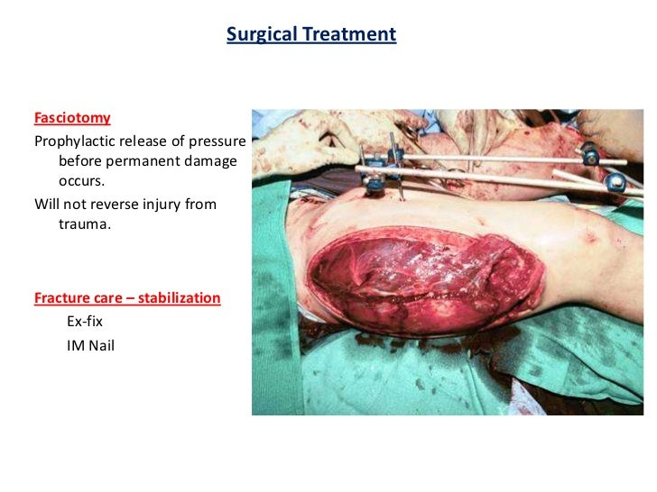 compartment syndrome, Skeleton