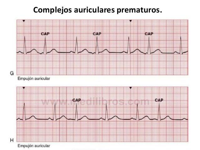 Complejos Prematuros Auriculares Y Ventriculares