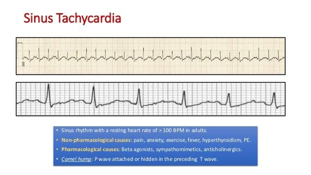 Complete EKG Interpretation Course