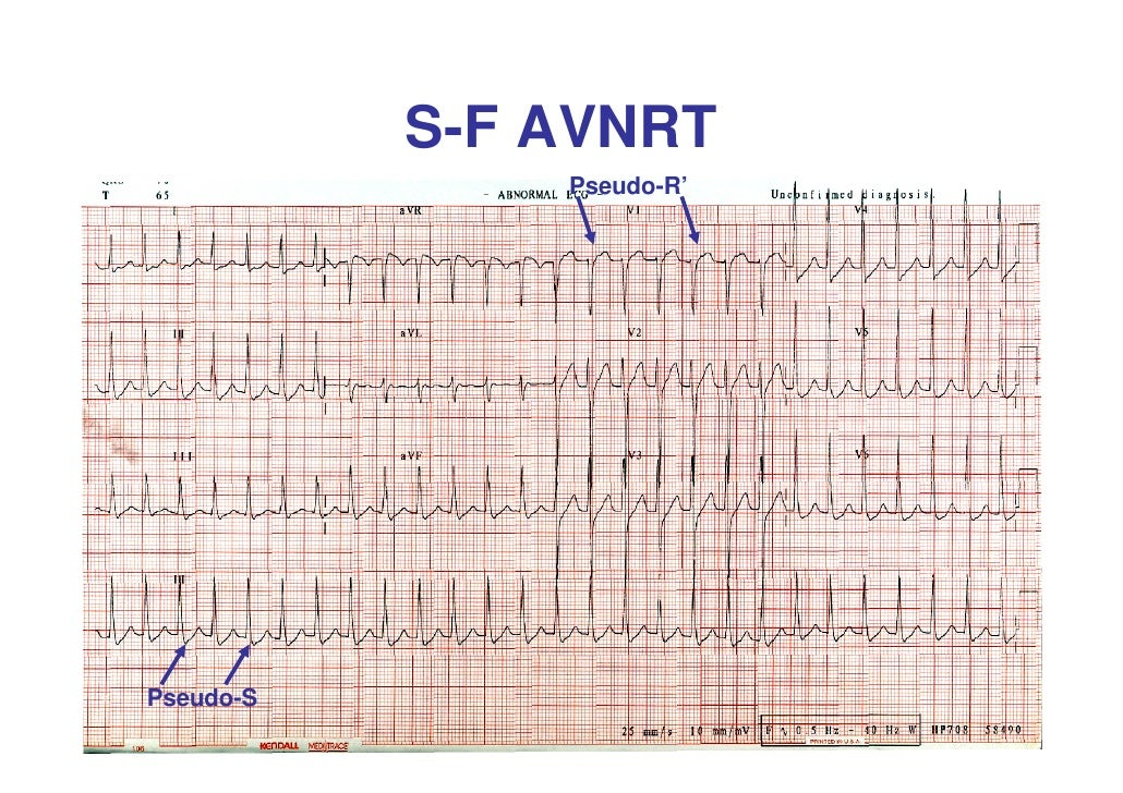 Differentiation Between Avnrt And Avrt Advanced Lecture
