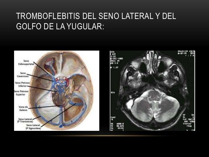La cirugía federal vascular perm
