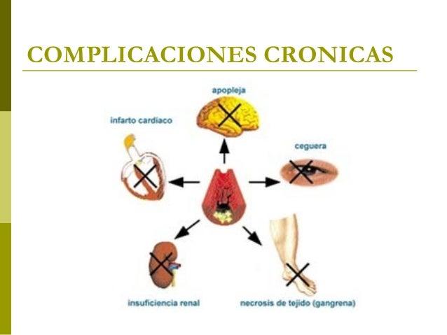 Complicaciones de la Diabetes Mellitus