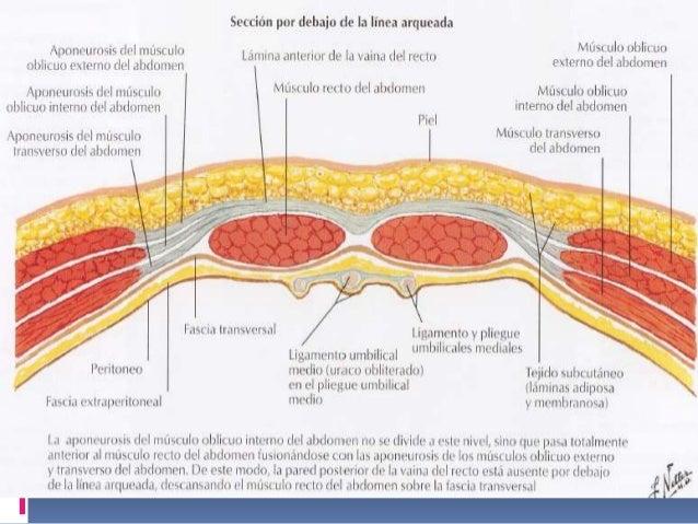 Complicaciones de la Pared Abdominal y Vías de Acceso mas Frecuentes.