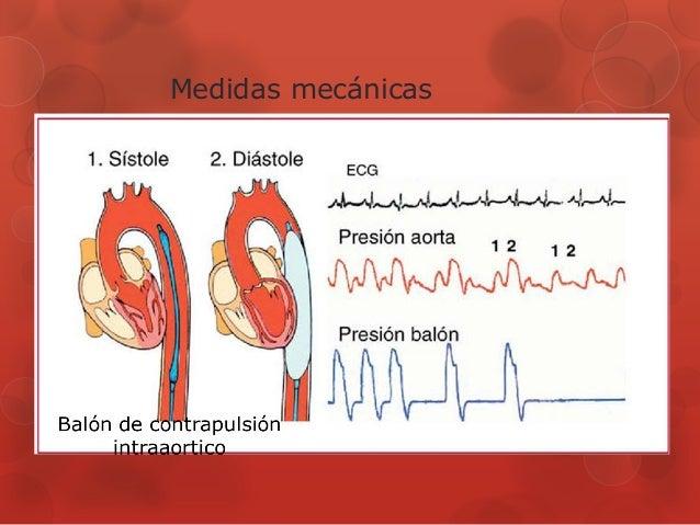 Aquí es whay usted debe hacer sobre definicion hipertensión