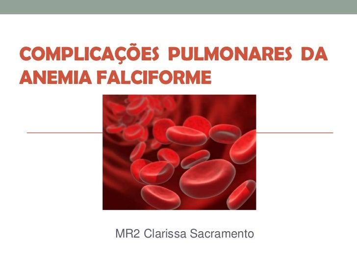 COMPLICAÇÕES PULMONARES DAANEMIA FALCIFORME        MR2 Clarissa Sacramento