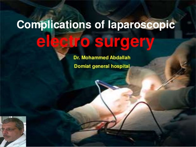 Complications of laparoscopic electro surgery Dr. Mohammed Abdallah Domiat general hospital