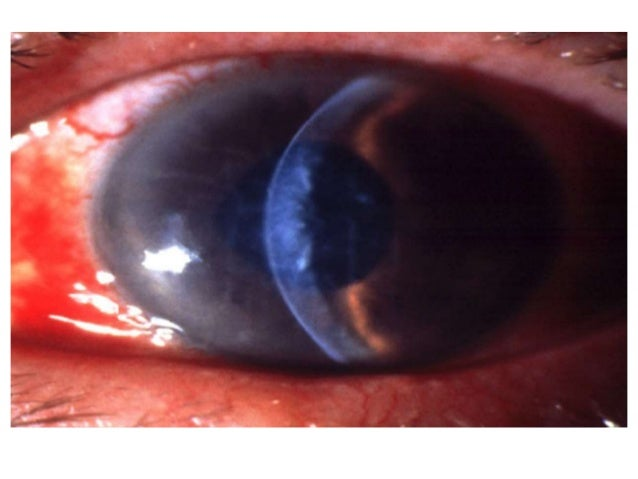 steroids after cataract surgery