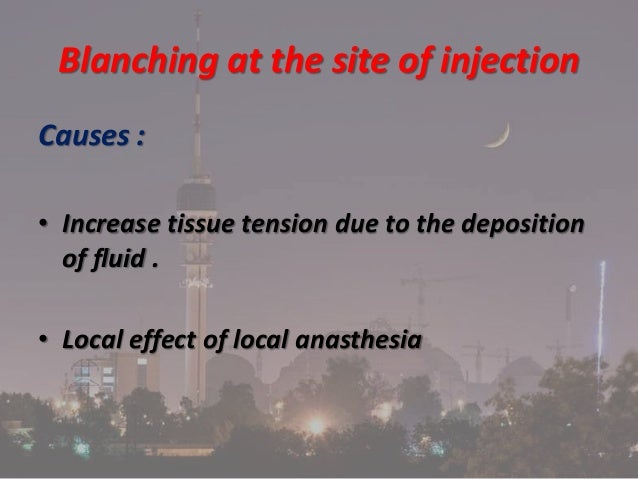 Complications of local anasthesia in dentistry