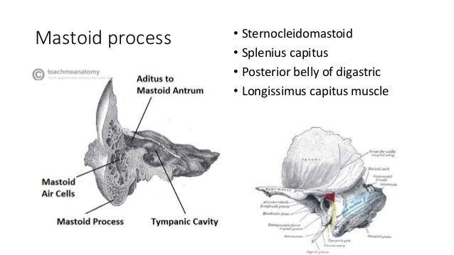 complications of mastoiditis, Skeleton