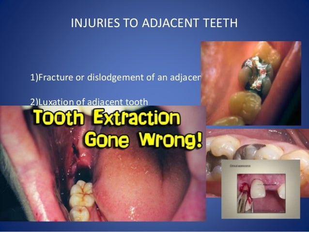 Complications Of Tooth Extraction And Its Management Oral Surgery