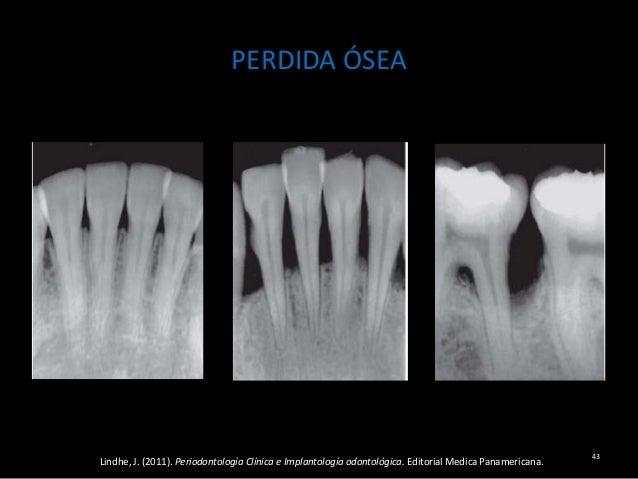 Componentes de un diagnóstico periodontal y plan de tratamiento.
