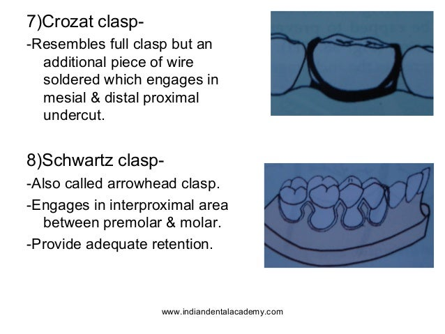 Components of removable appliances 2 /certified fixed orthodontic cou…