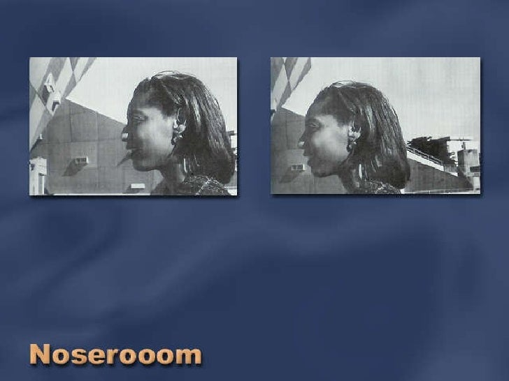NoseRoom
