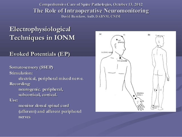 Comprehensive clinical electrophysiologic studies in the ...