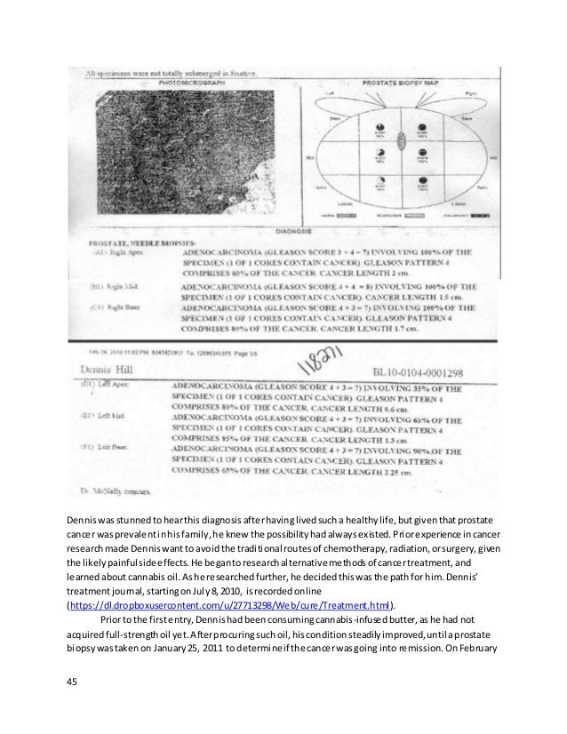 45 Denniswas stunnedtohearthisdiagnosis afterhavinglivedsucha healthylife,butgiventhatprostate cancer wasprevalentinhis fa...