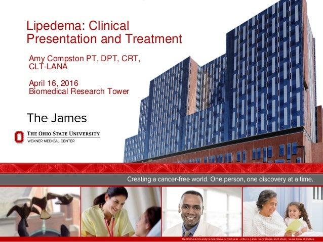 Lipedema: Clinical Presentation and Treatment