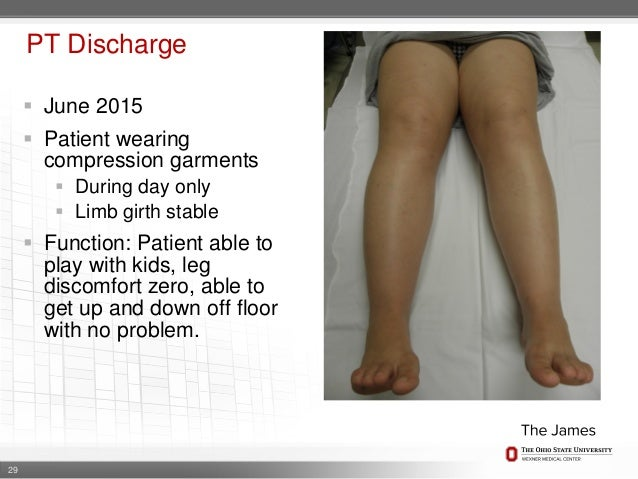 Lipedema Clinical Presentation And Treatment
