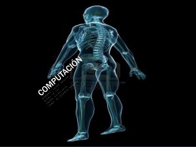 ¿El esqueleto ?El cuerpo humano de un adulto tiene 206  huesos, mientras que el de un reciénnacido está formado por cerca ...
