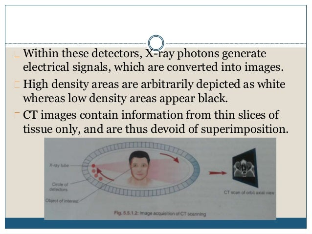 Within these detectors, X-ray photons generate electrical signals, which are converted into images. High density areas are...