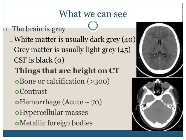 What we can see  The brain is grey White matter is usually dark grey (40) Grey matter is usually light grey (45) CSF is b...