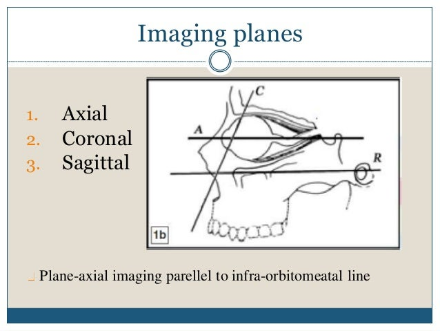 The plane inclined at 30° to the orbito-meatal line best depicts the optic canal and the entire anterior visual pathway.