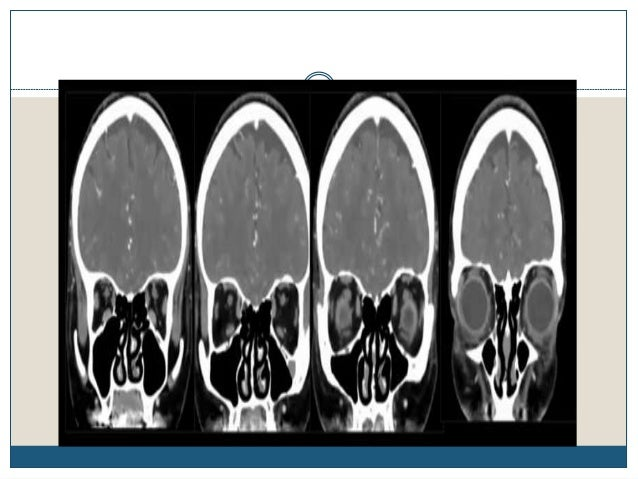 Imaging in different pathophysiologies