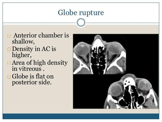 Bilateral discrete lacrimal gland enlargement