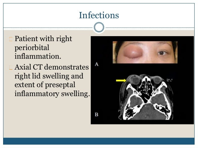 Thyroid ass. ophthalmopathy