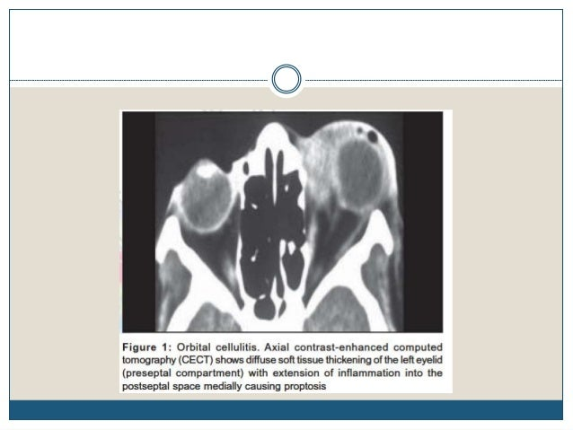Orbital pseudotumor Moderate diffuse enhancement Presenting as infiltrative soft tissue mass in right orbit with loss of n...