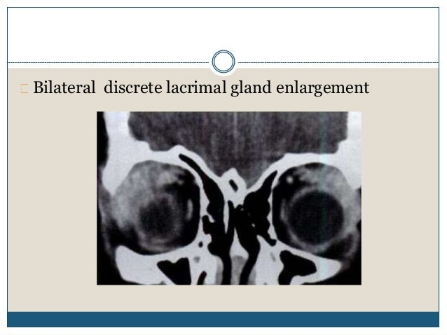 Orbital pseudotumor Focal &infiltrative, poorly circumscribed, thickening on lacrimal and orbital structures may be seen. ...