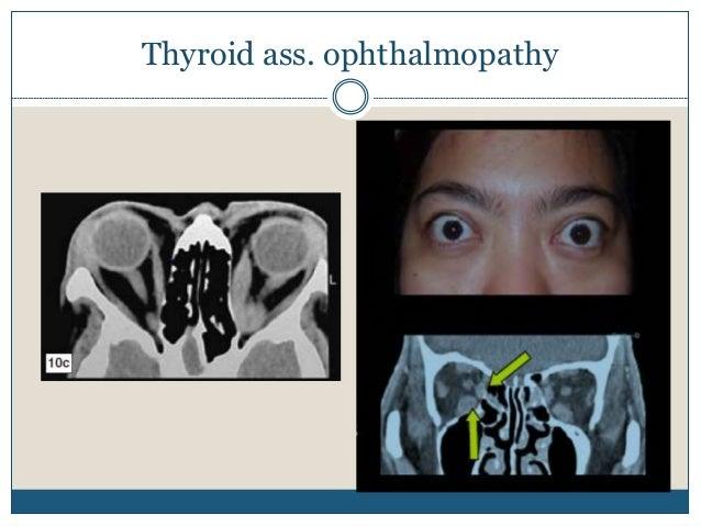 Optic nerve sheath meningioma Segmental or diffuse thickening of optic nerve Fusiform and uniform thickening of optic nerv...