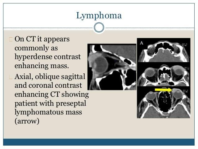 Cavernous haemangioma Coronal CT scan showing left cavernous haemangioma. mass is intraconal, well defined, homogeneous, w...