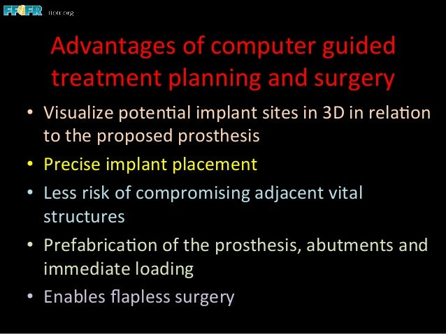 Image-Guided Implant Surgery