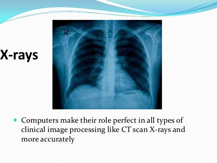 computers in medical field essay Medicine had always relied on technology such as scalpels, probes and materia   using computers was one of the most important technological changes in.