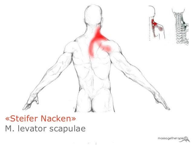 Steifer Nacken Krankschreibung