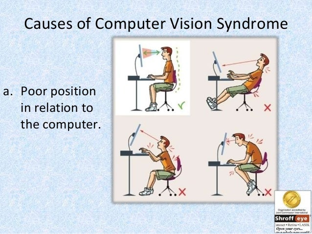 characteristics of computer vision syndrome Go to eye diseases computer vision syndrome computer vision syndrome describes a group of eye and vision-related problems that result from prolonged computer use.