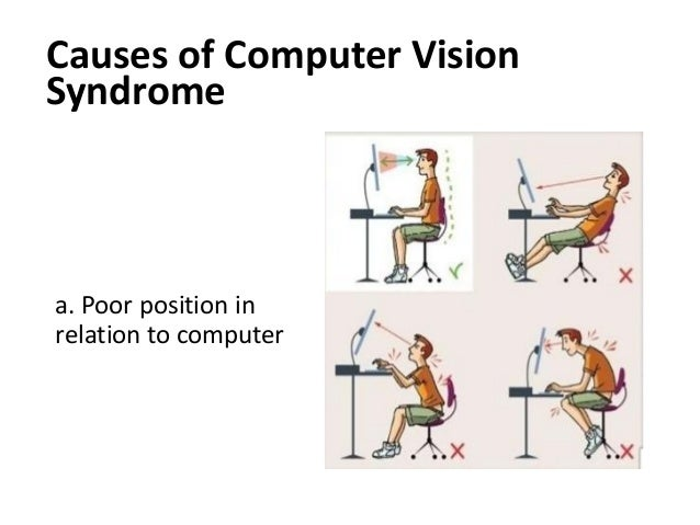 thesis computer vision syndrome Home computer vision syndrome computer vision syndrome what effects do our eyes feel it's alarming to note that, since 2007,  laptops and computer monitors.
