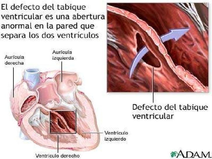 Comunicacin Interventricular E Interauricular