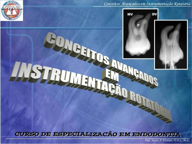 Prof. Marco A. Versiani, D.D.S., M.Sc. Conceitos Avançados em Instrumentação Rotatória CURSO DE ESPECIALIZACÃO EM ENDODONT...