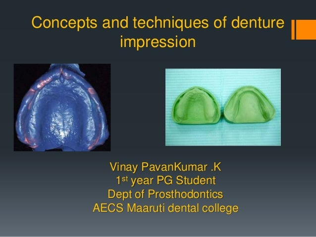 Concepts and techniques of denture impression Vinay PavanKumar .K 1st year PG Student Dept of Prosthodontics AECS Maaruti ...