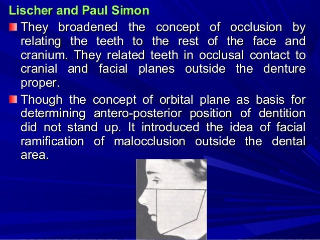 Milo Hellman Hellman showed the racial variation in so called normal occlusion through anthropological studies. Hellman an...