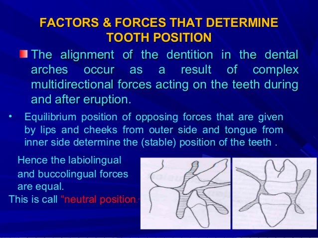 • proximal and occlusal contacts are important in maintaining tooth alignment and arch integrity. • Mastication causing bu...